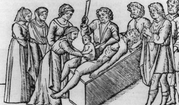 An illustration of an ancient Caesarean section